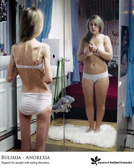 causas de la bulimia. la Anorexia , es un trastorno