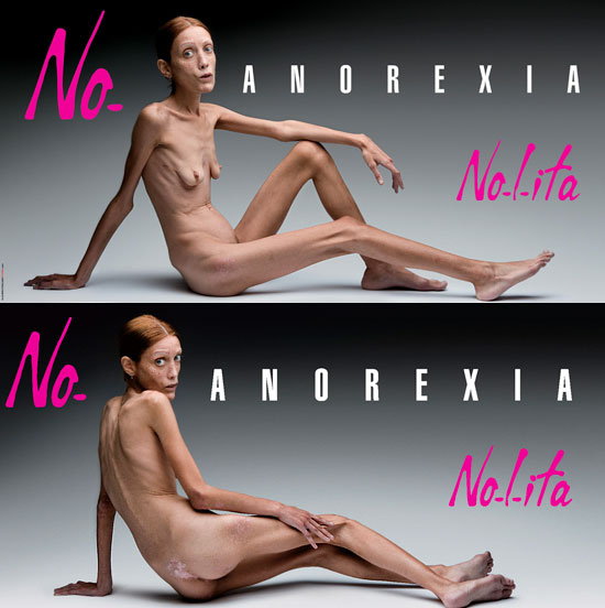 Toscani_anorexia_01