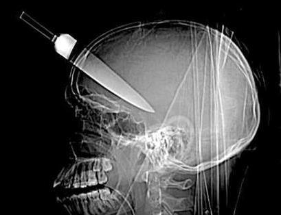 Radiografias cuchillo cabeza