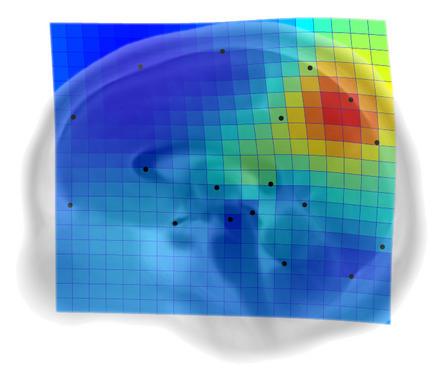 El-precuneo-clave-en-la-evolucion-cerebral-de-nuestra-especie_image_380